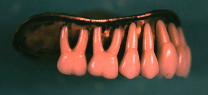 Dentures with gold base and porcelain teeth.